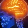 Low doses of marijuana component can protect brain against injury